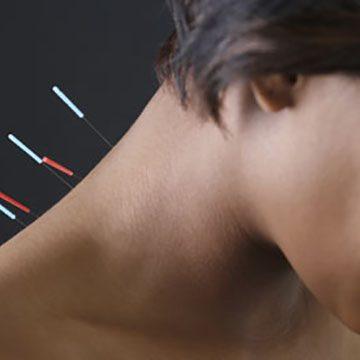 Acupuncture_02