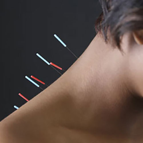 acupuncture needles in the back of a woman's neck